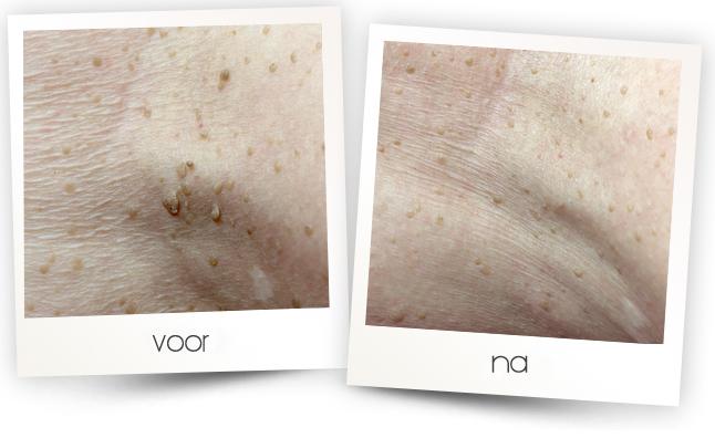 Huidverbetering voor en na: Pigmentvlekken verwijderen en behandelen